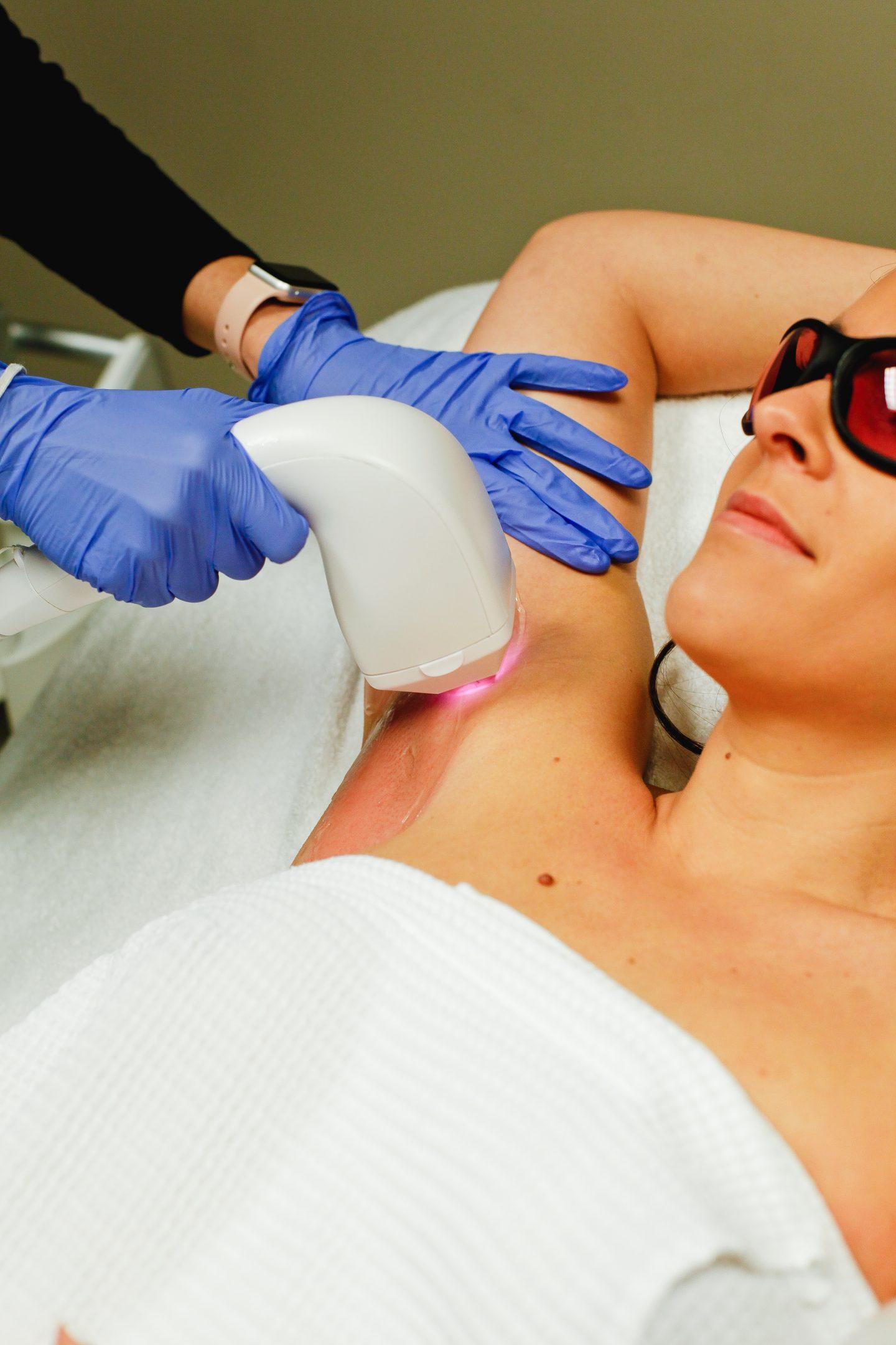 laser hair removal memphis